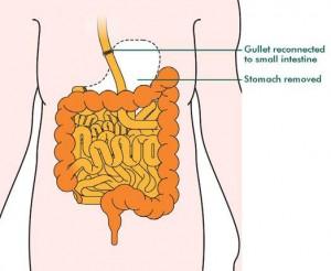 gastrectomy1