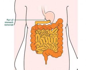 gastrectomy2