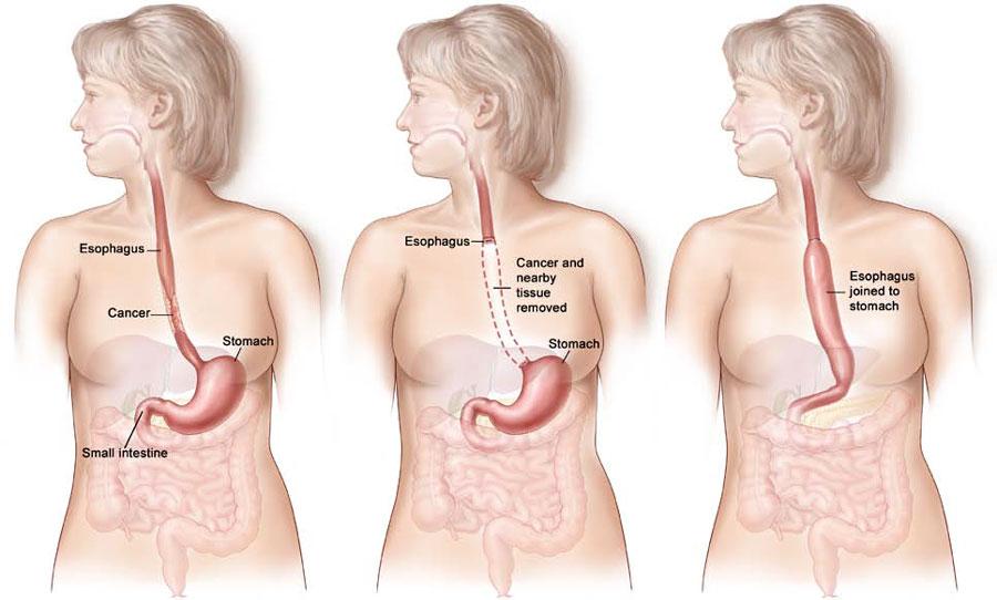 oesophagectomy