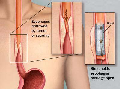 stent1