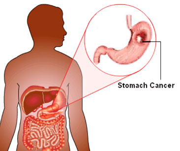 stomach-home